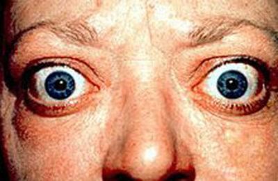 Endokrine Orbitopathie bei Morbis Basedow